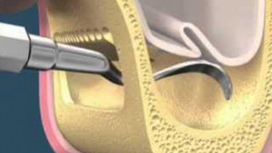 Elevació del si maxil·lar en els implants dentals