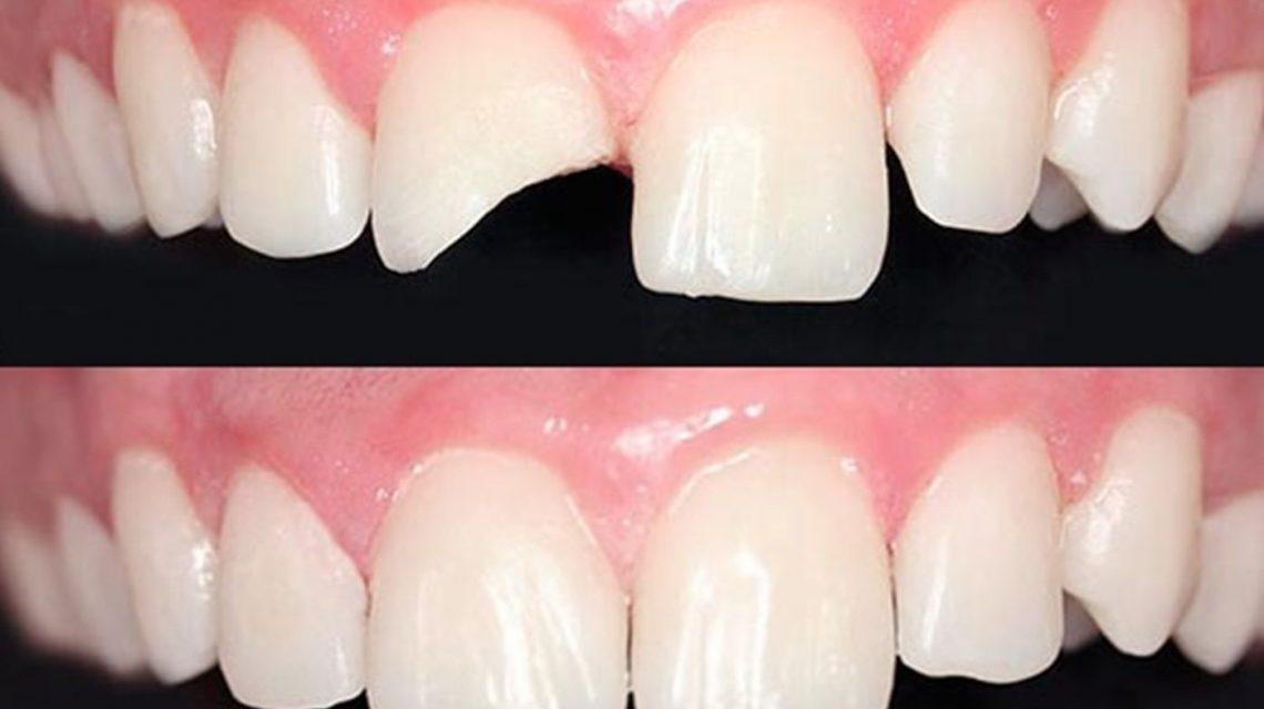 Dent trencada