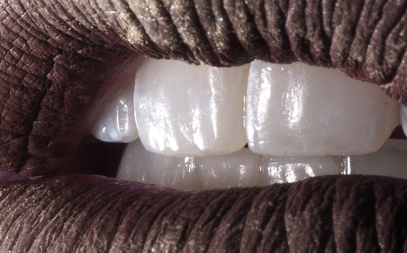 Estètica dental - Clínica Isern
