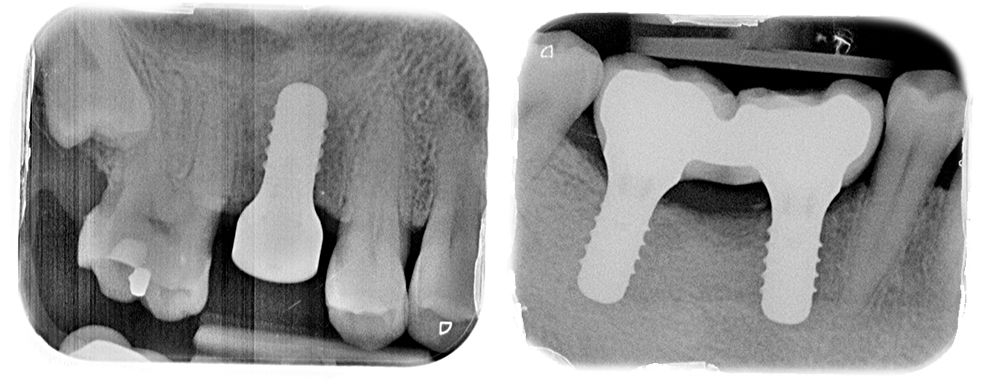 Implantologia - Clínica Isern